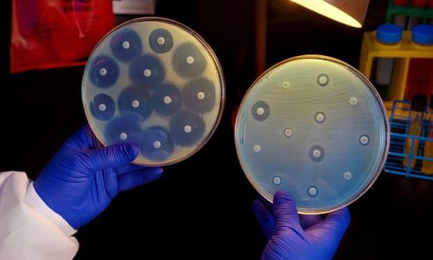 Petri dishes image
